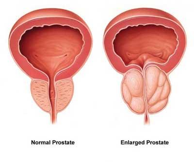prostate turp surgery forum
